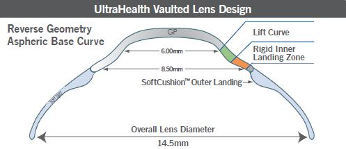 ultrahealth vaulted lens design great vision