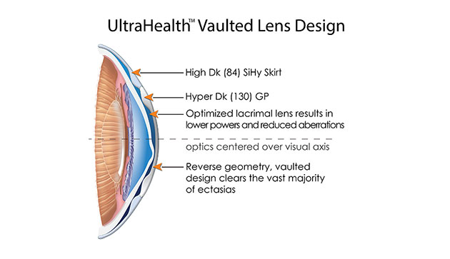 ultrahealth vaulted lens design